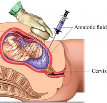 Odber plodovej vody (amniocentéza) – kedy a prečo ju tehotné ženy majú podstúpiť?